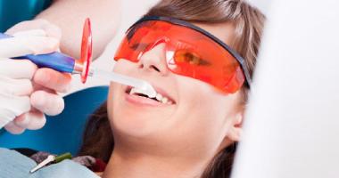 """Фторирование зубов по доступной цене в клинике """"Дэнт-Элит"""""""