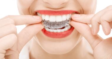 """Изготовление индивидуальных кап для отбеливания зубов по доступной цене в клинике """"Дэнт-Элит"""""""