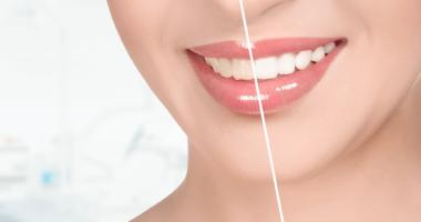"""Лазерное отбеливание зубов по доступной цене в клинике """"Дэнт-Элит"""""""