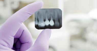 """Рентген зубов по доступной цене в клинике """"Дэнт-Элит"""""""