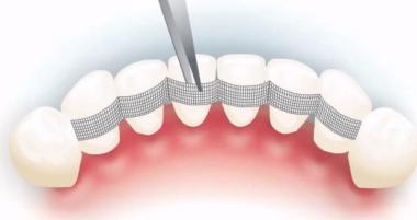 """Шинирование зубов по доступной цене в клинике """"Дэнт-Элит"""""""