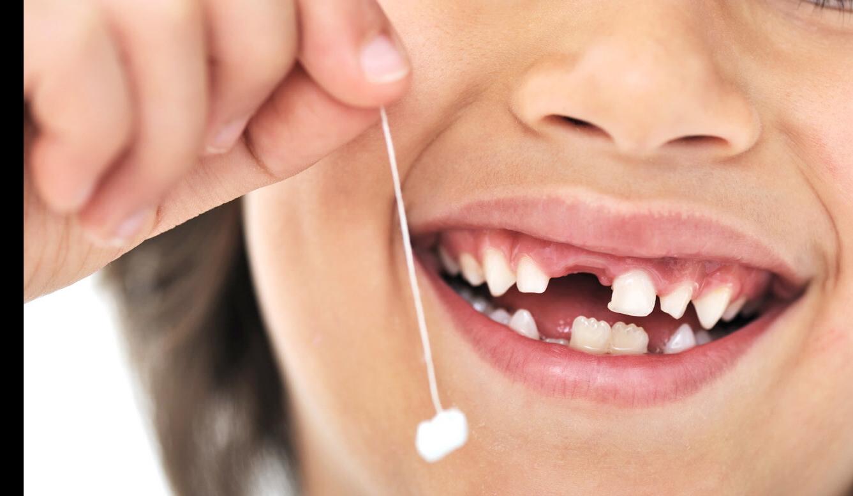 Удаление молочных зубов по доступной цене в клинике